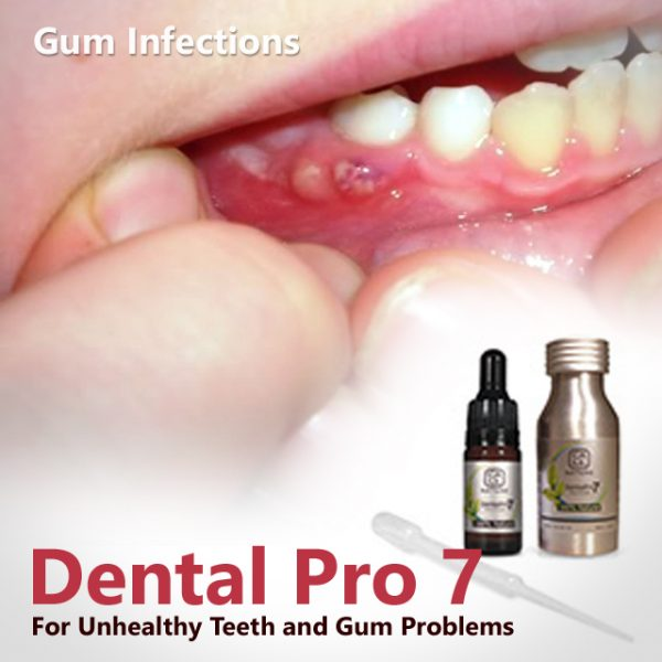 Can you reverse receding gums?