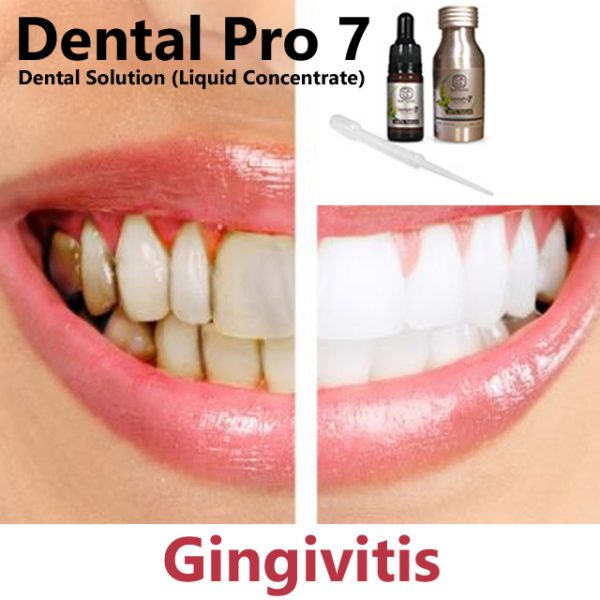 Receding Gums Gingivoplasty