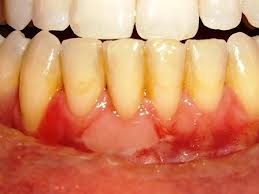 What Do Unhealthy Gums Look Like